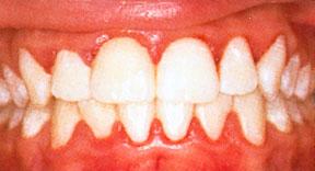 betændt tandkød